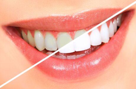 diş beyazlatma teknikleri